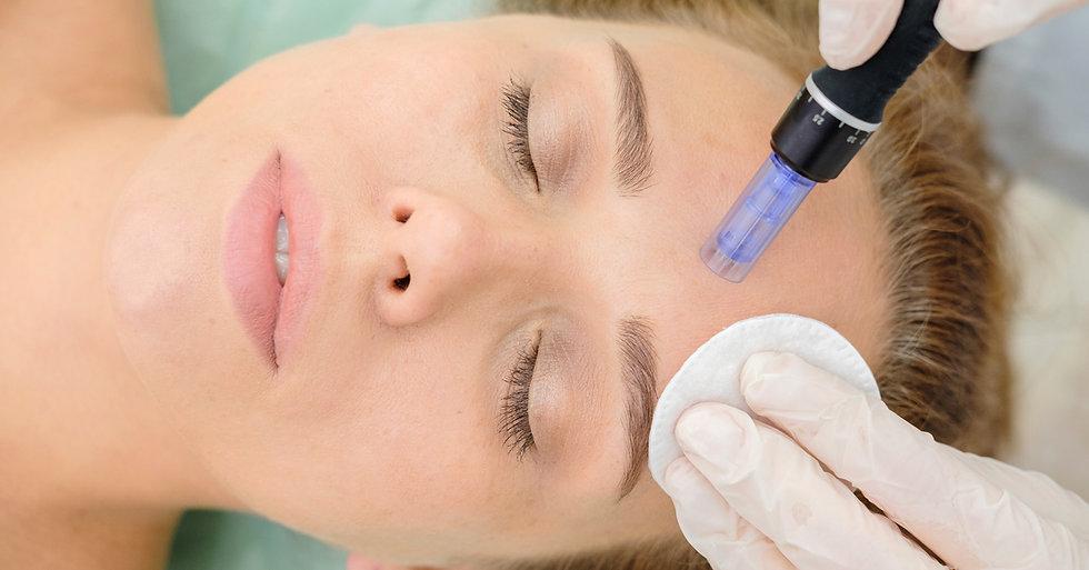 Microneedling micro needling huidverjonging anti aging botox fillers inspuiting rimpels li