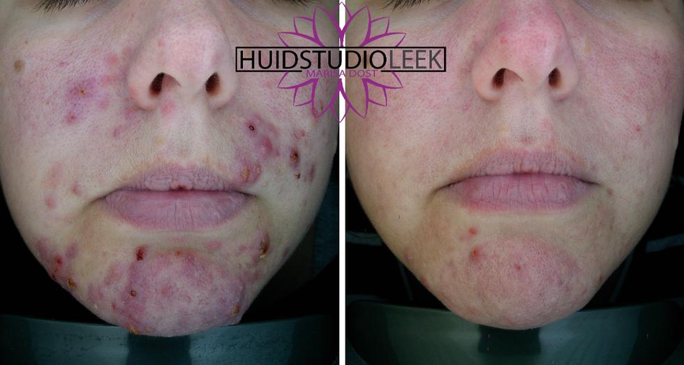 voor en na foto's voorzijde acne rosacea huidprobleem oplossen marisa dost huidstudio leek
