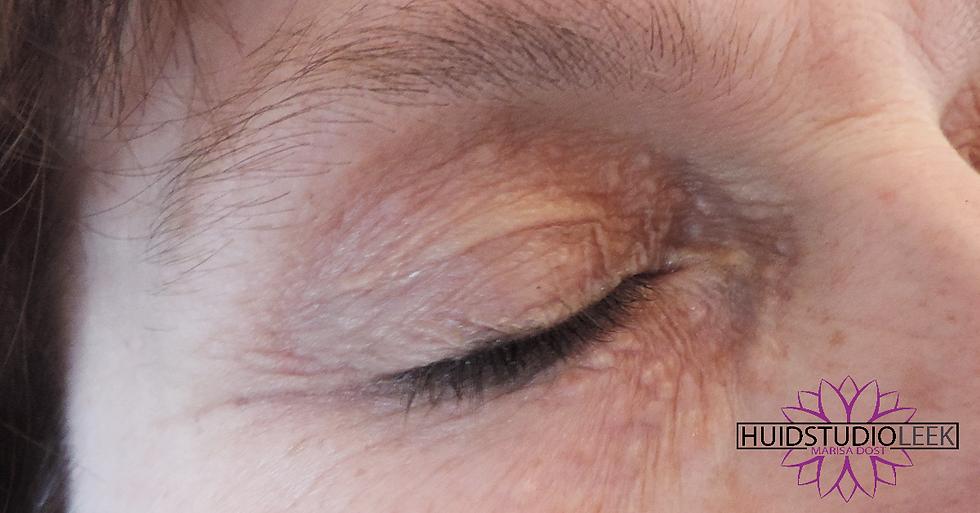 Syringomen behandelen bij huidstudio leek marisa dost huidspecialist groningen leek roden