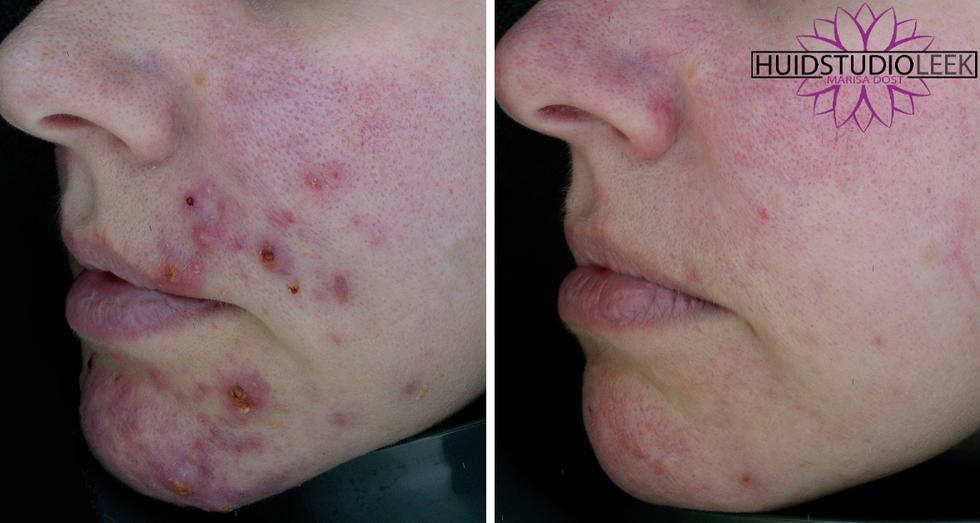 voor en na foto's linker zijde acne rosacea huidprobleem oplossen marisa dost huidstudio l