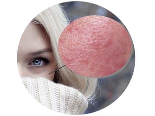 Rosacea behandeling