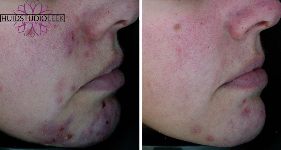 voor en na foto's rechter zijde acne rosacea huidprobleem oplossen marisa dost huidstudio