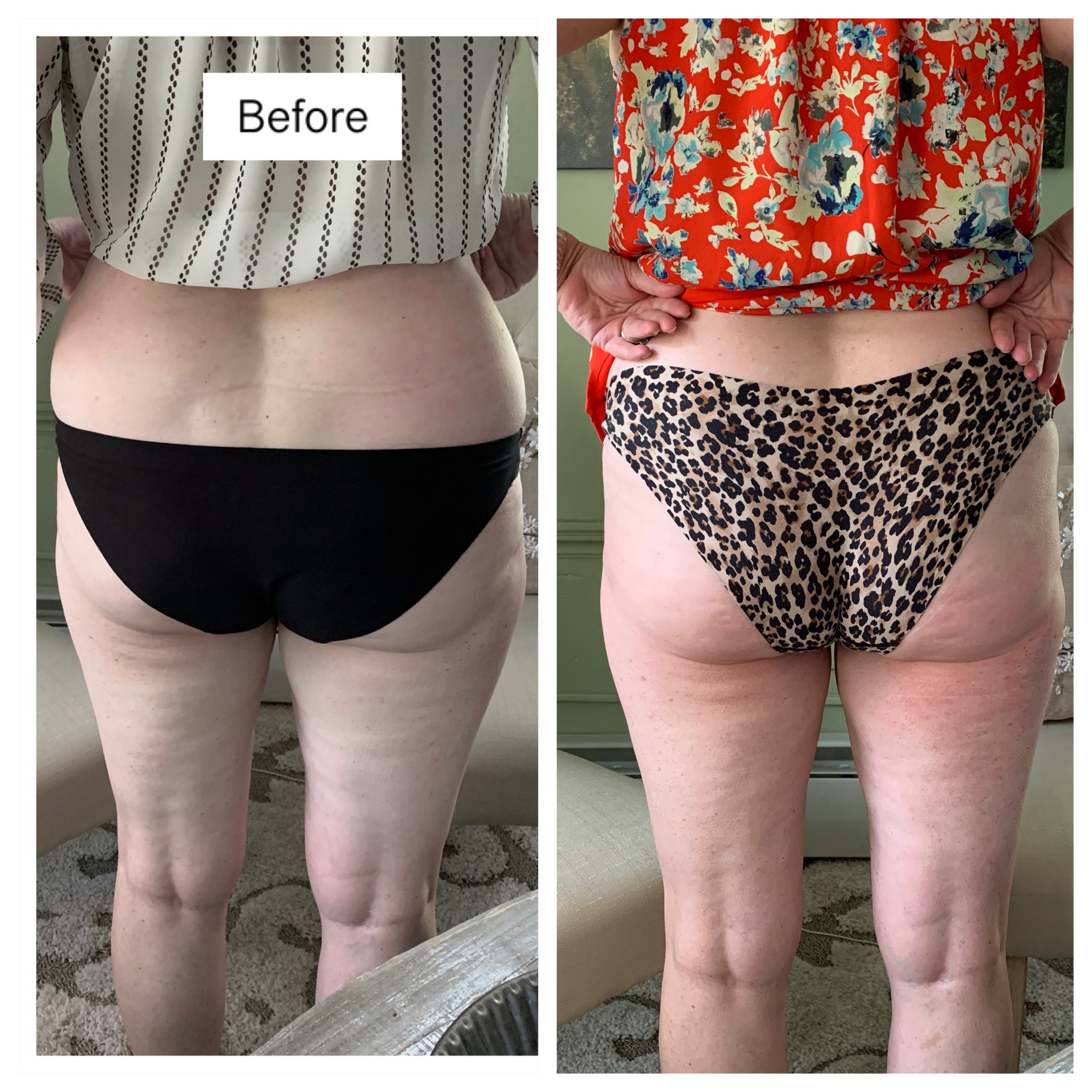 Butt and Love Handles Cavitation Lipo