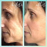 Microcurrent Before and After Picture, Microcurrent Facial, Youthful Skin