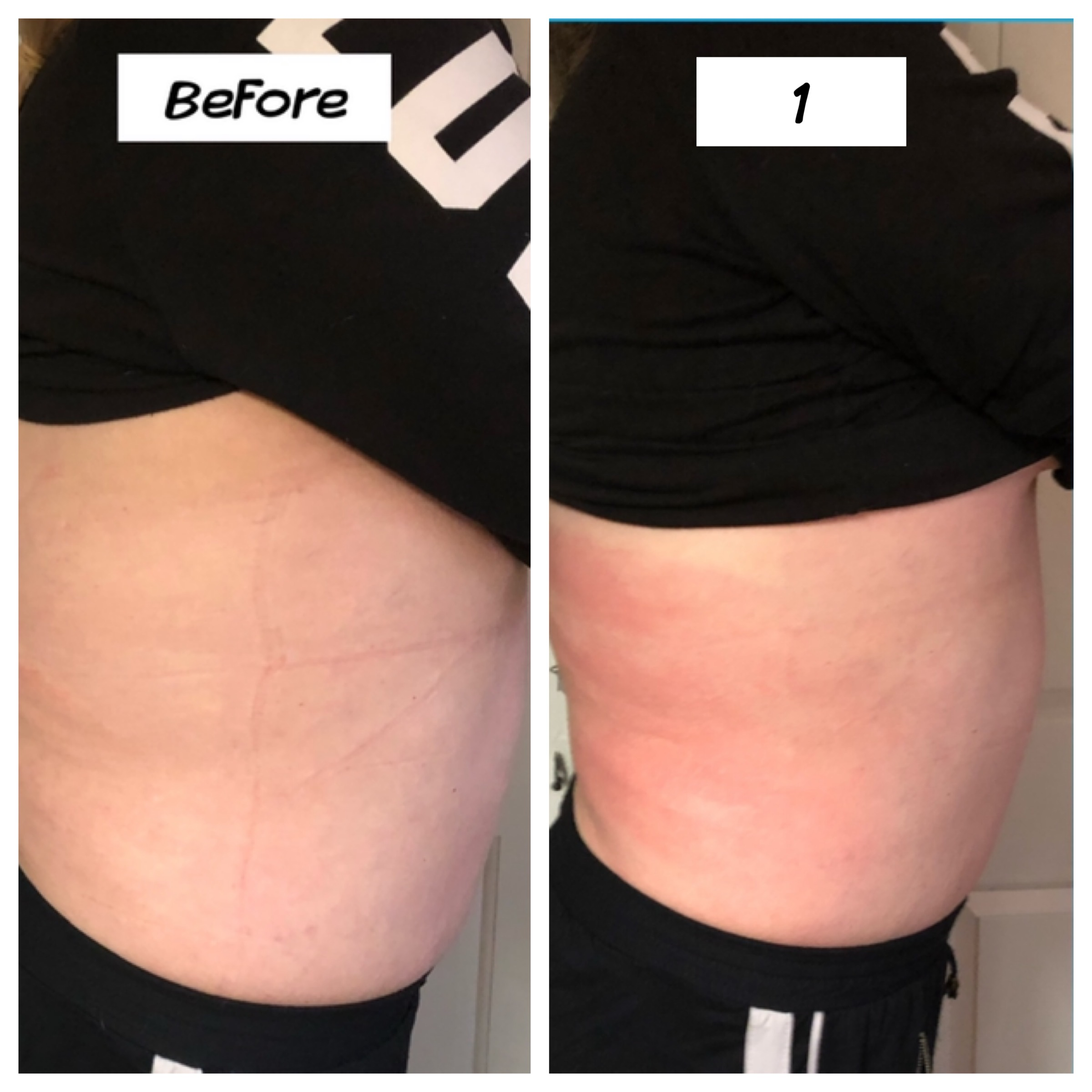Cavitation Lipo Flank Slimming