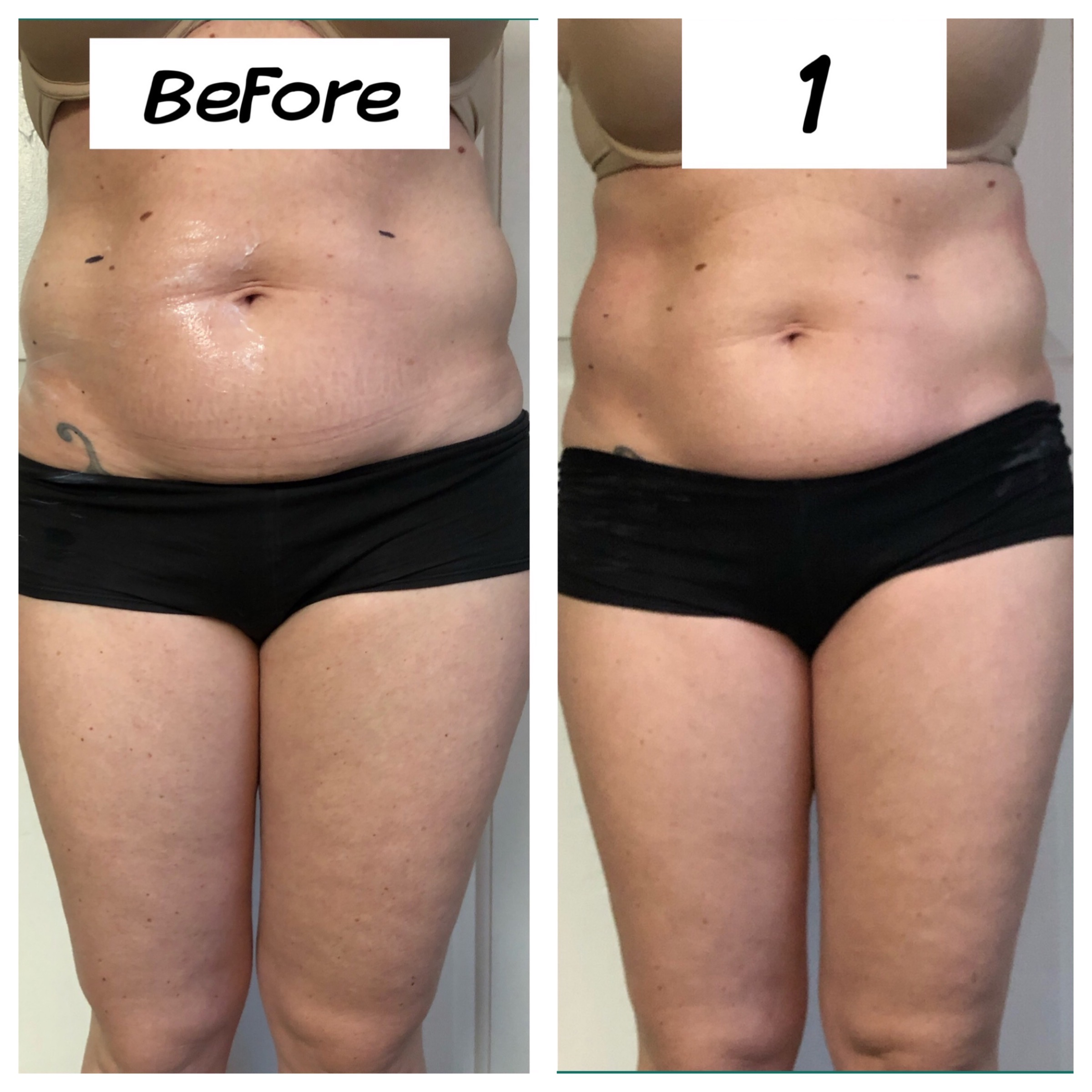 Cavitation Lipo Tummy Slimming