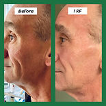 Radio Frequency Man Difference in chin and jowls, tightens skin