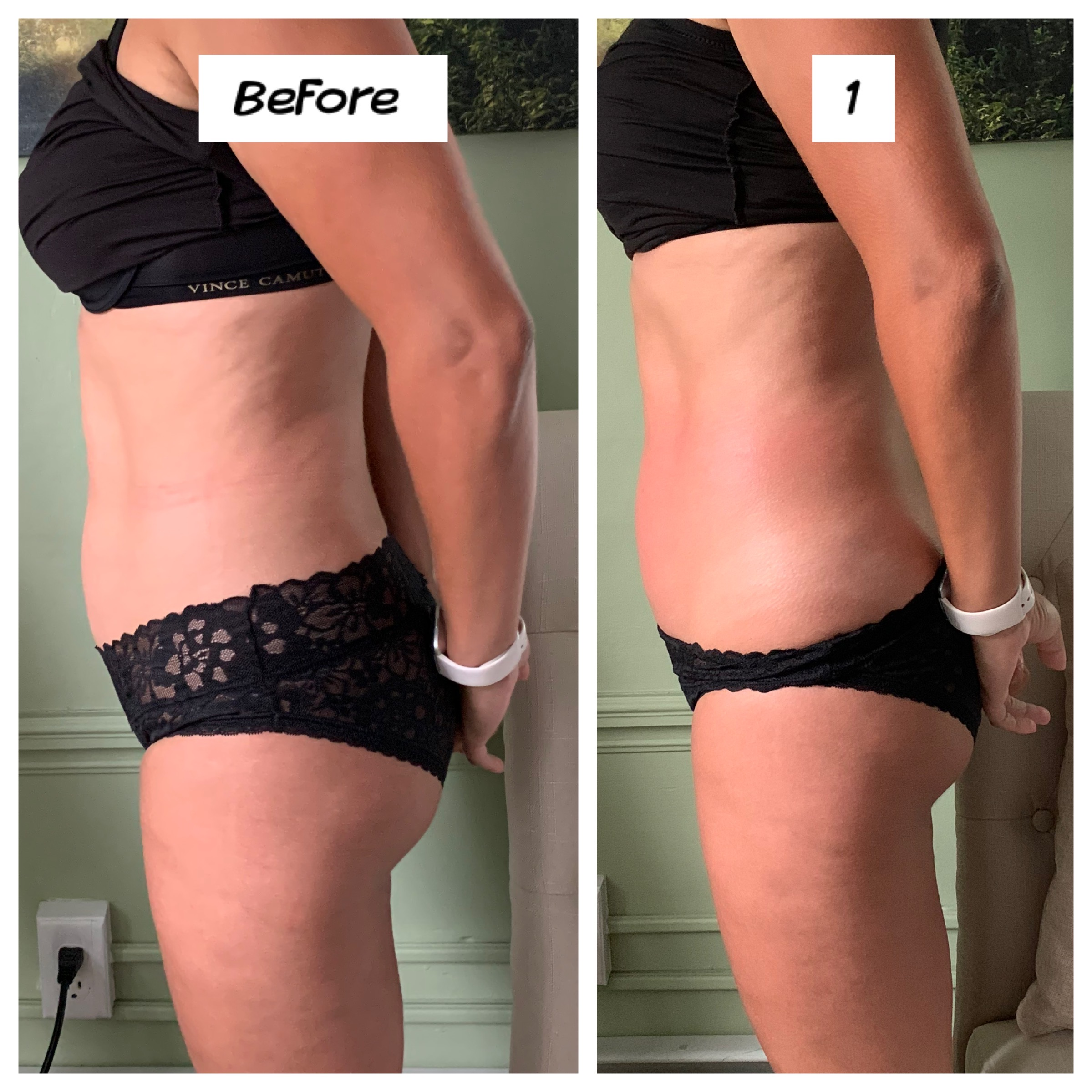 Cavitation Lipo Before and After