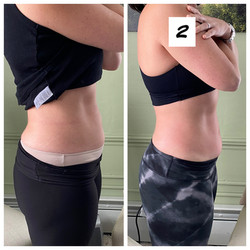 Cavitation Before and After