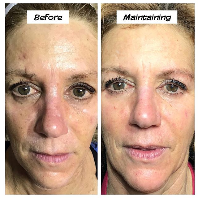 Microcurrent Facelift Before and After