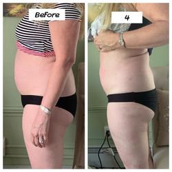 Cavitation Lipo Tummy Slimming