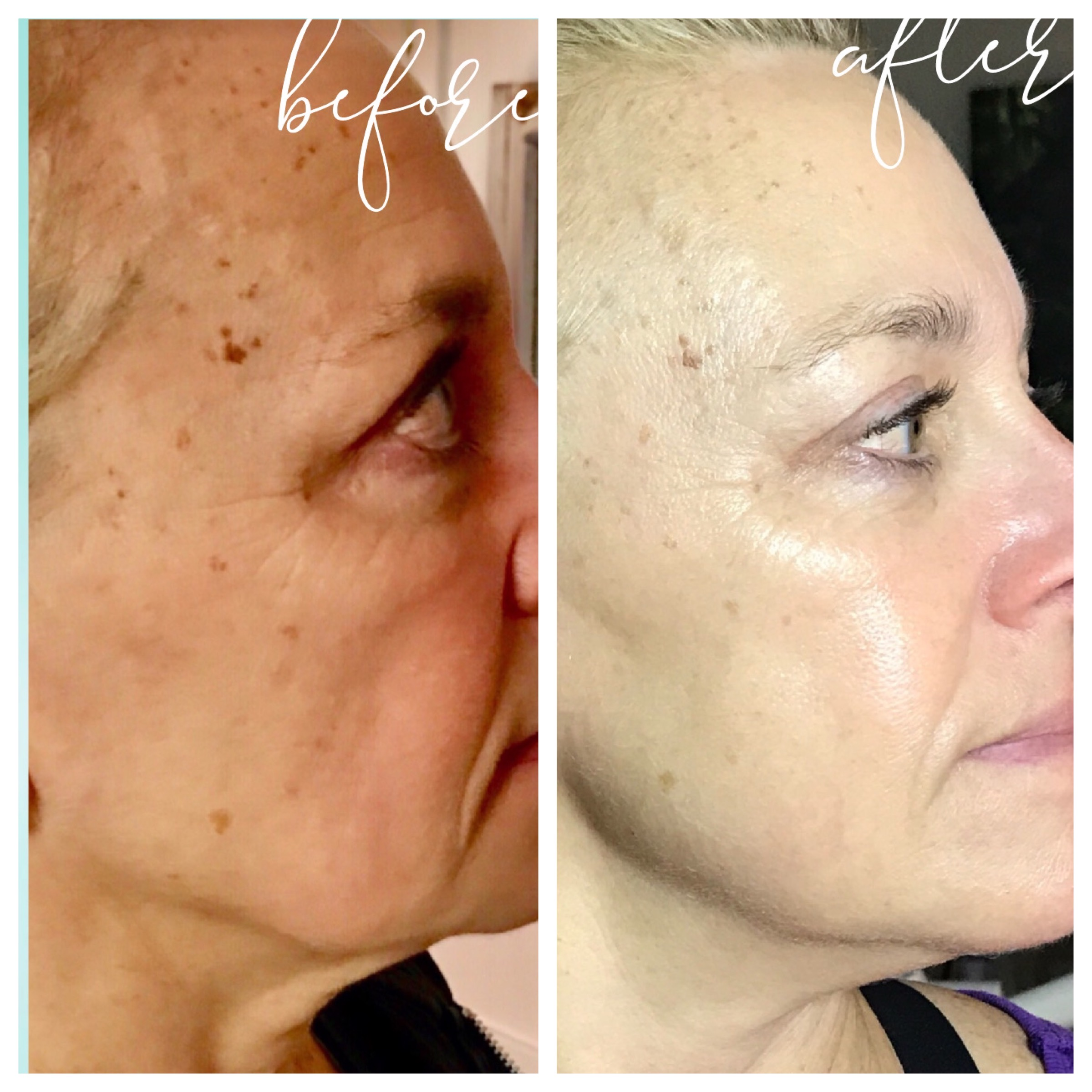Microcurrent Facial before and after
