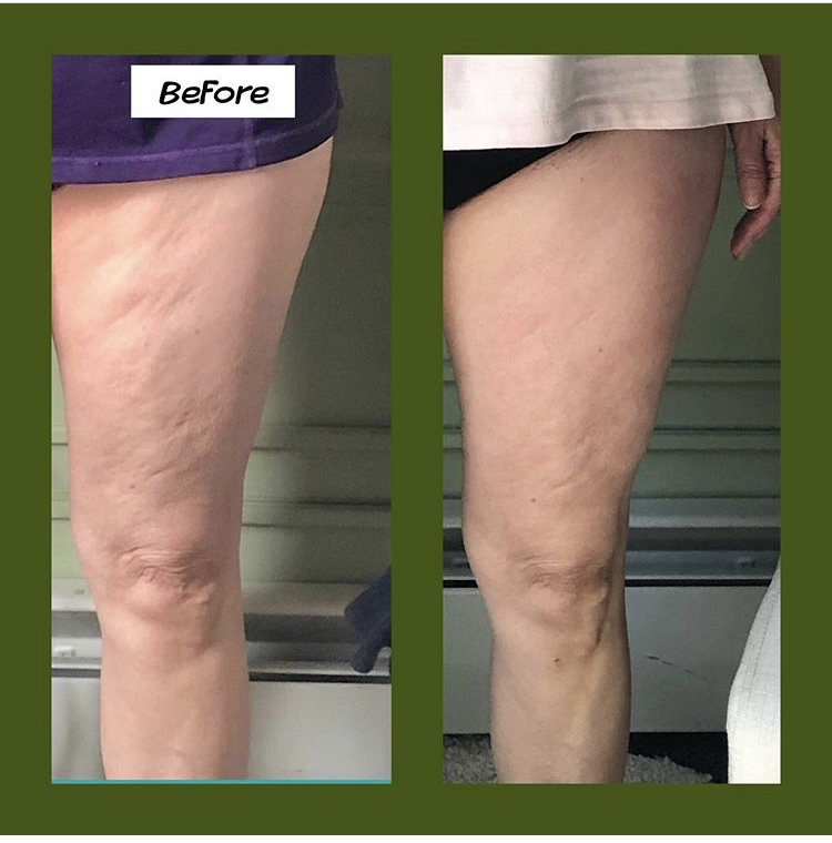 Cavitation Body Slimming and Shaping