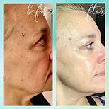 Microcurrent Facelift Before and After, Microcurrent Facial, Youthful Skin