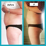 Cavitation Before and After, Body Treatment, Body Slimming, Body Shaping, Skin Tightening, Skin Smoothing,