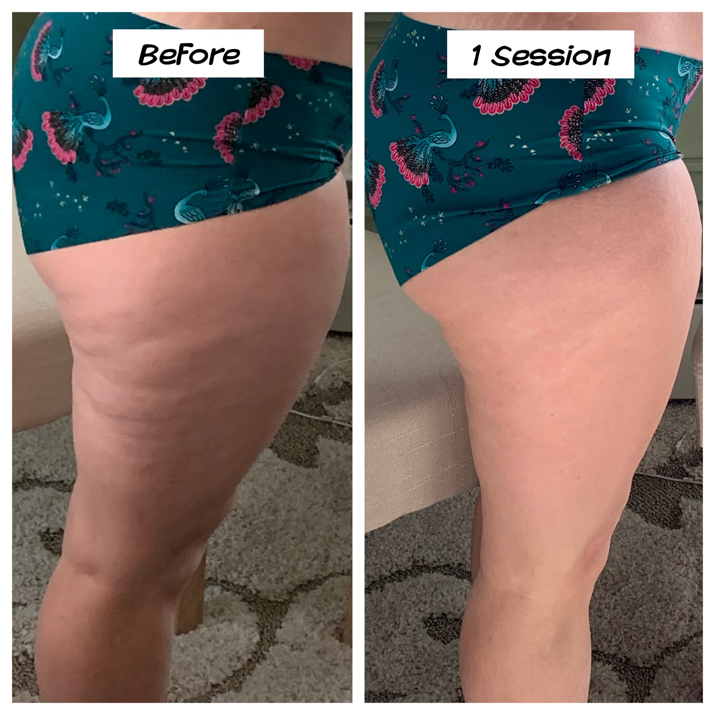 Cavitation Lipo Leg Slimming and Smoothi