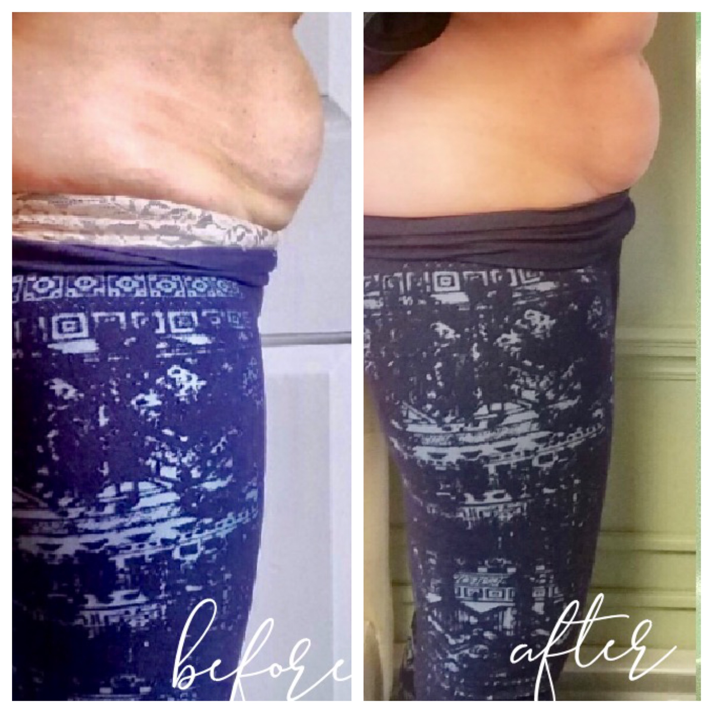 Cavitation Lipo Tummy Tightening and Smo