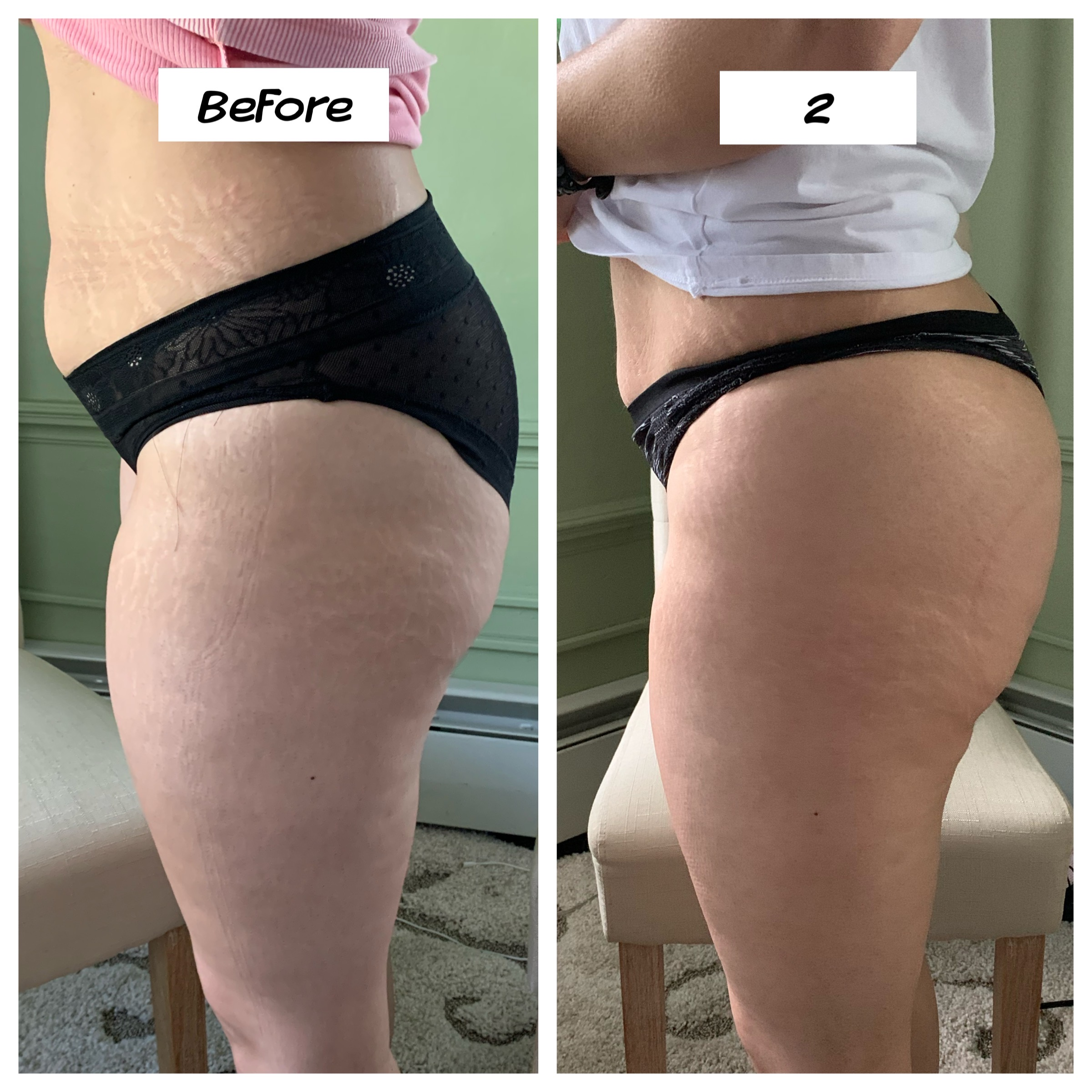 Cavitation Lipo leg Smoothing