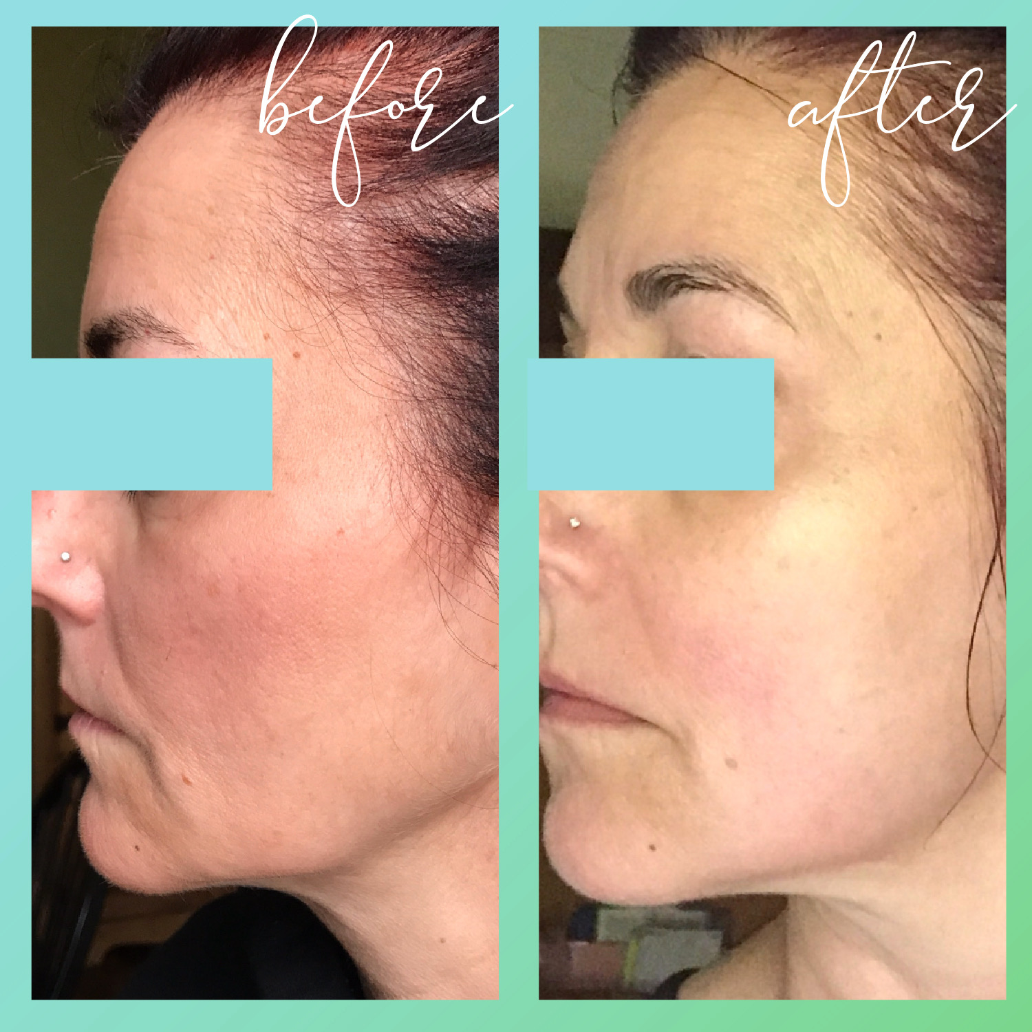 Before and After Microcurrent Facelift