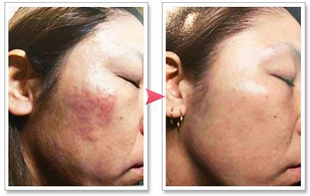リタライフを使用した女性の肌を比較した写真