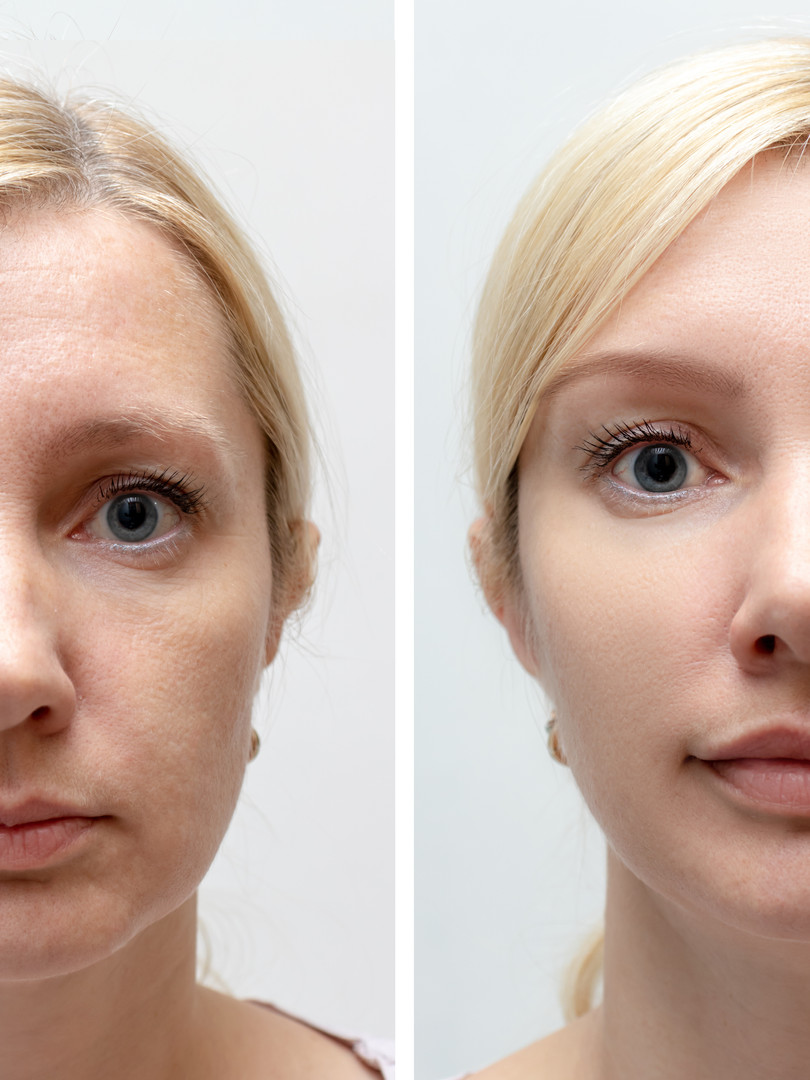 Face Lift Restoration using botox and fillers