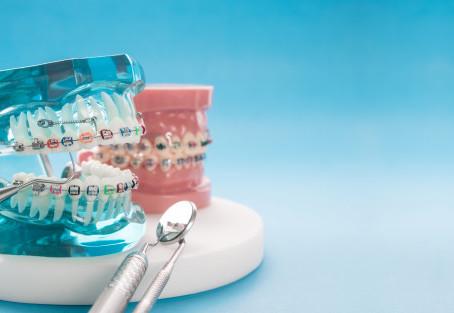 Ortodoncia. ¿Porqué es importante?