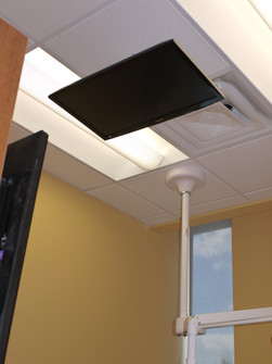 Overhead Monitor Mount for Reclined Patients