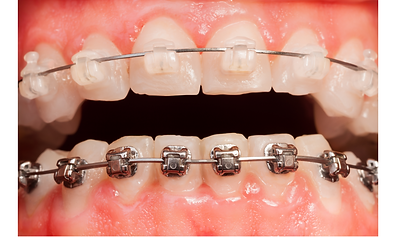 clear vs metal braces.png