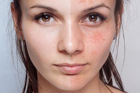 beauty evolution lincoln skin peels.jpg