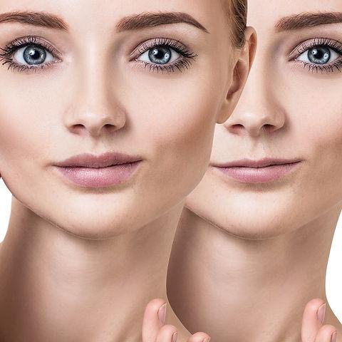 Beauty evolution lincoln lip fillers.jpg