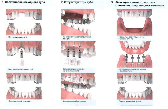 Процесс установки зубного имплантата делится на четыре этапа: