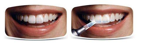 Как предотвратить и лечить эрозию эмали зубов?