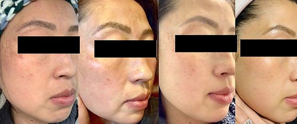 lady skin treatment 2.jpg