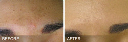 before-after-BrownSpots
