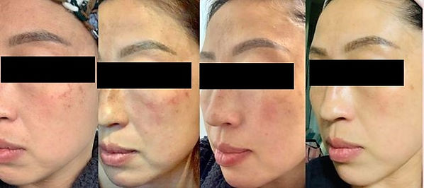 lady skin treatment 1.jpg