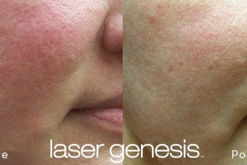 Package of 3 Laser Genesis Treatments
