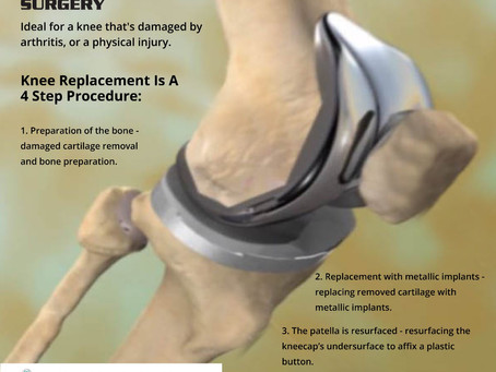 What's Total Knee Replacement?
