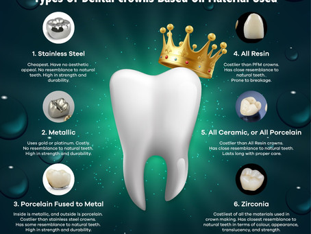 Dental Crowns - Types And Materials That Go Into Its Making