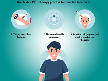 Stop Hair Loss - PRP Therapy Uses A Wise Approach To Counter It