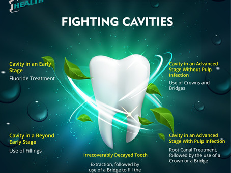 I Have Cavities, Will I Lose My Tooth?