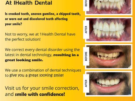 Smile Makeover At 1Health Dental
