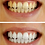 Thumbnail: 44% Carbamide Peroxide Whitening Solution