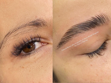 6 simple ways to grow the eyebrows thicker, It's a Brow Rehab Time!