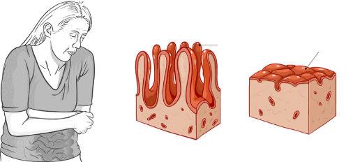 celiac met lijntjes.jpg