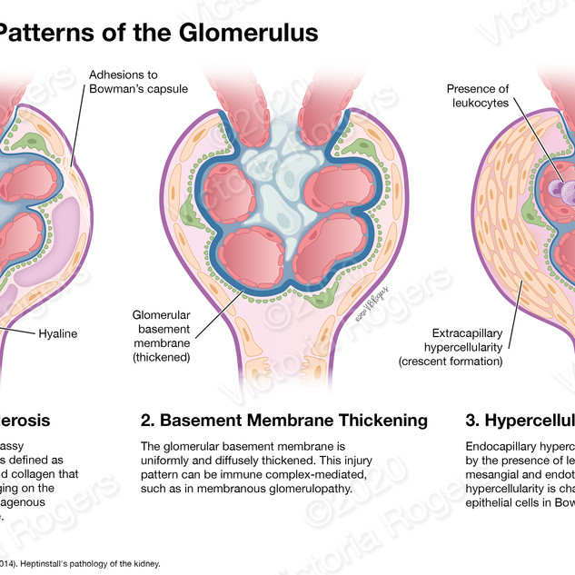 Common Injury Patterns of the Glomerulus