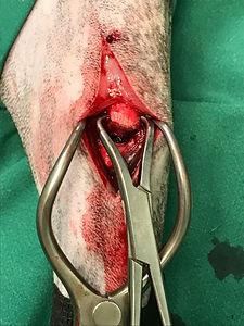 orthopeadic surgery.JPG