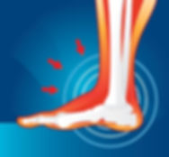 Neuropathy pain can be treated with our effective, non-surgical neuropathy pain treatment.