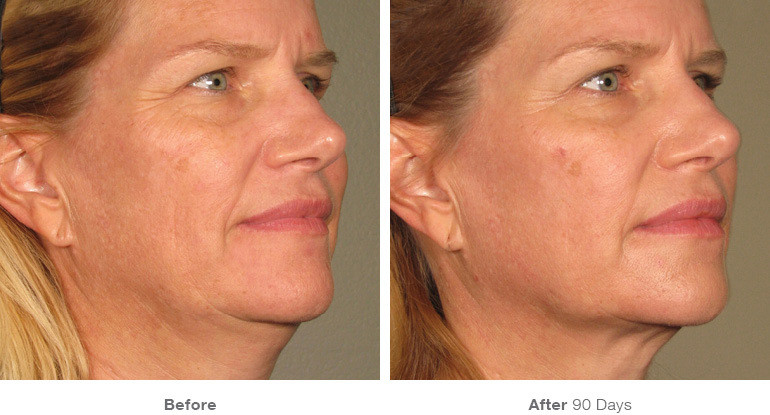 9before_after_ultherapy_results_full-fac