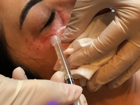 Using the SkinPen with PRP's