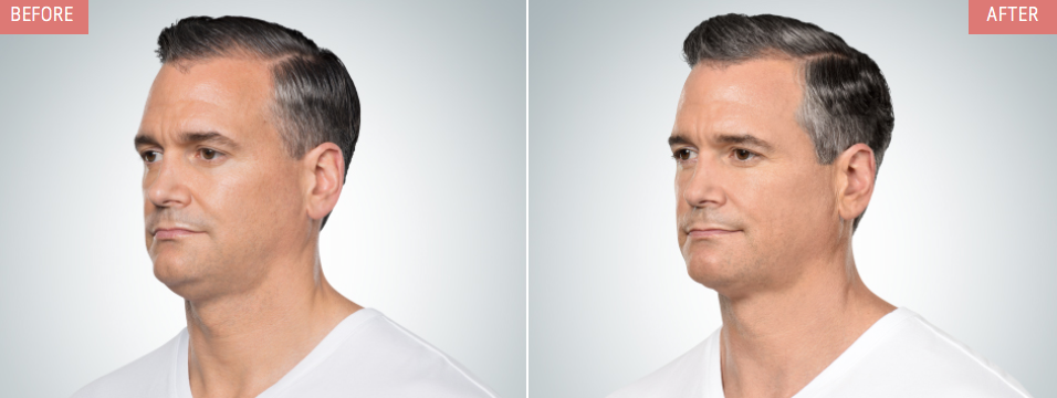 kybella-male-injections-treatments-NYC-b